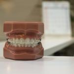 4_Kokia dantų gydymo breketais eiga