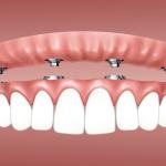 Ką reikia žinoti prieš implantuojantis dantis